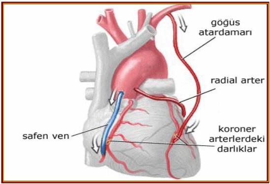 Kalp ameliyatlarında Yeni dönem!